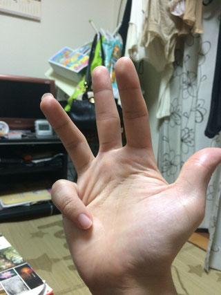右手小指曲げる