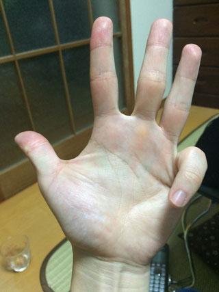 左手小指曲げる